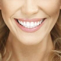 Smile Makeover são josé dos pinhais