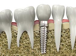implantes dentais são josé dos pinhais